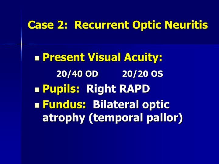 Case 2:  Recurrent Optic Neuritis