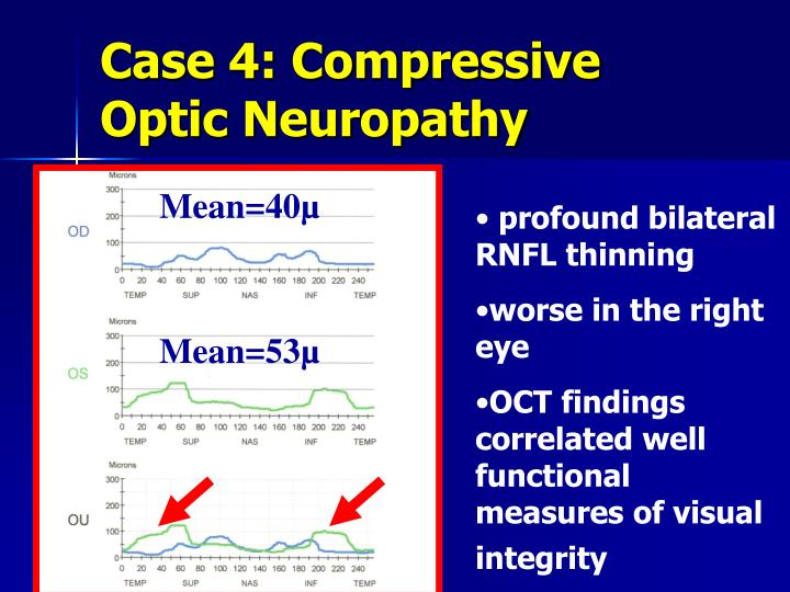 Case 4: Compressive Optic Neuropathy
