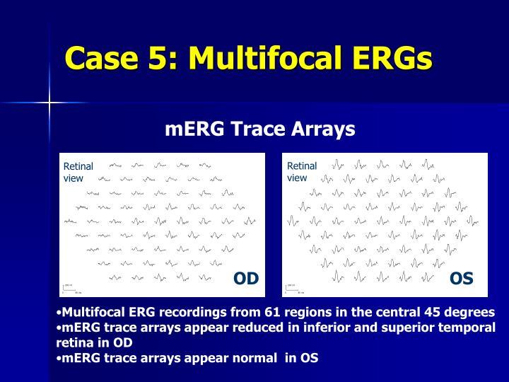 Case 5: Multifocal ERGs