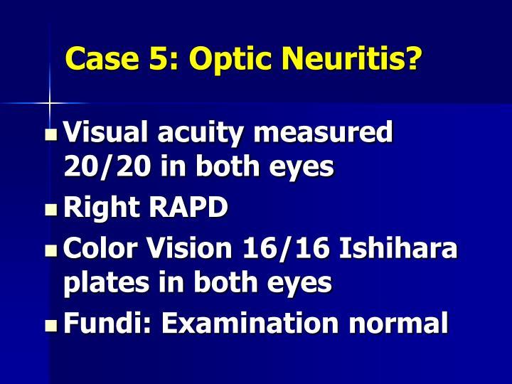 Case 5: Optic Neuritis?