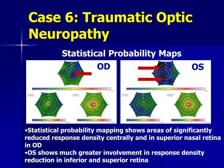 Case 6: Traumatic Optic Neuropathy