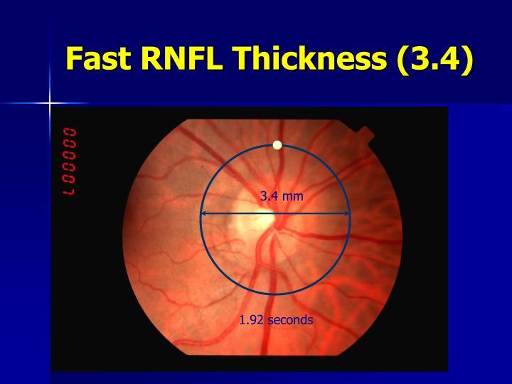 Fast RNFL Thickness (3.4)