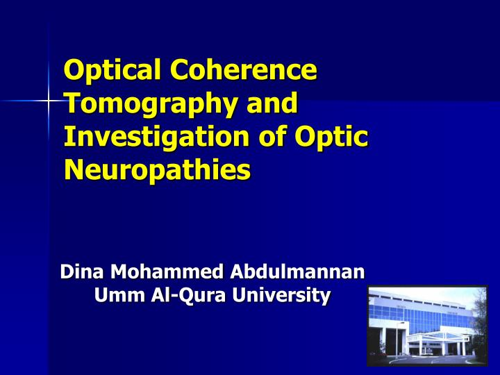 Optical coherence tomography and investigation of optic neuropathies