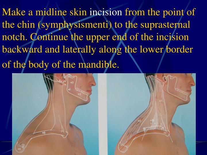 Make a midline skin