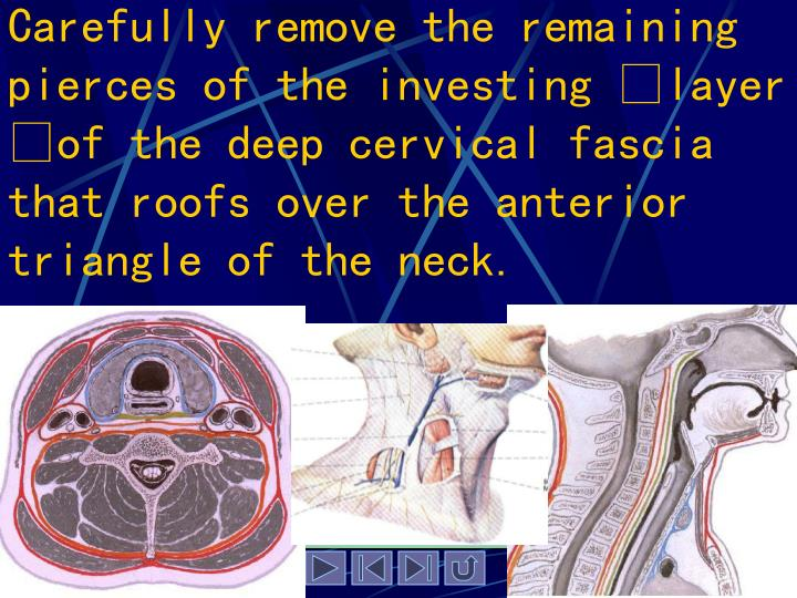 Carefully remove the remaining pierces of the investing layer of the deep cervical fascia that roofs over the anterior triangle of the neck.