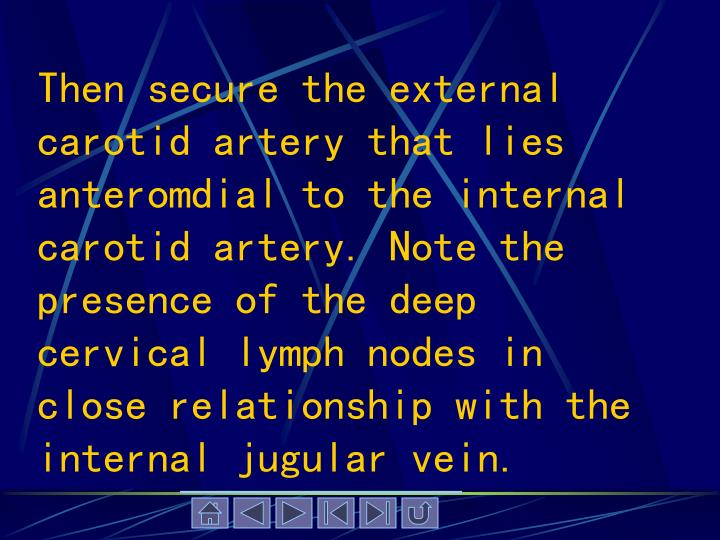 Then secure the external carotid artery that lies anteromdial to the internal carotid artery. Note the presence of the deep cervical lymph nodes in close relationship with the internal jugular vein.