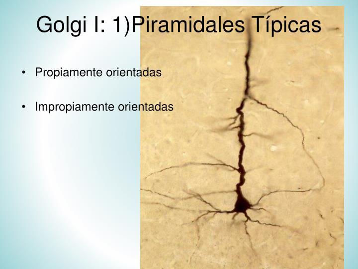Golgi I: 1)Piramidales Típicas