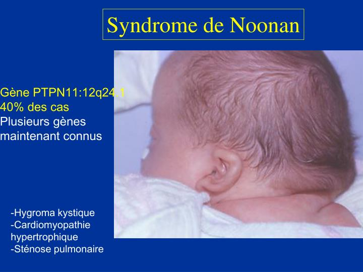 Syndrome de Noonan