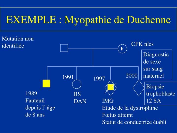 EXEMPLE : Myopathie de Duchenne