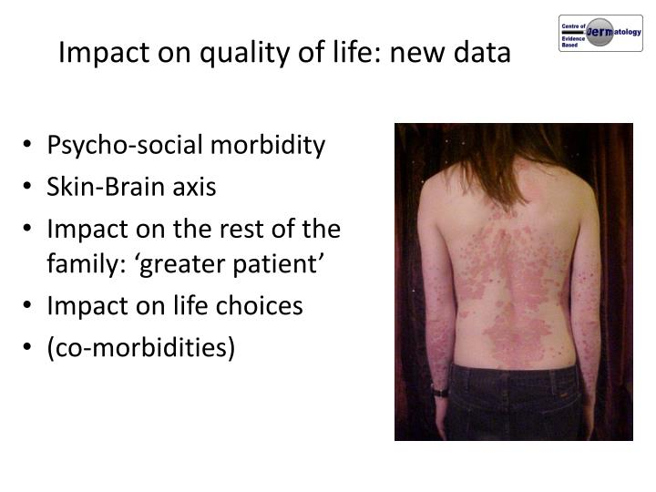 Impact on quality of life: new data
