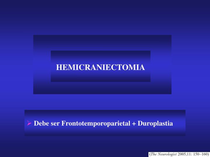 HEMICRANIECTOMIA
