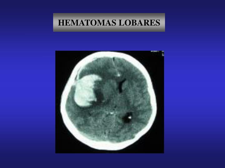 HEMATOMAS LOBARES