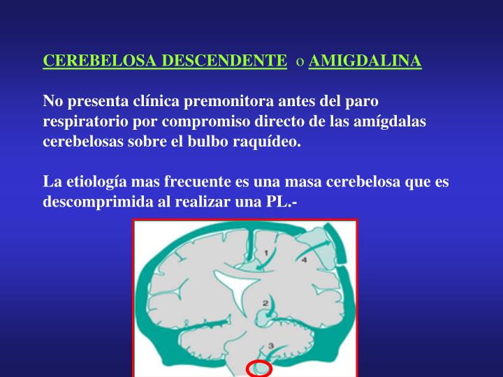 CEREBELOSA DESCENDENTE