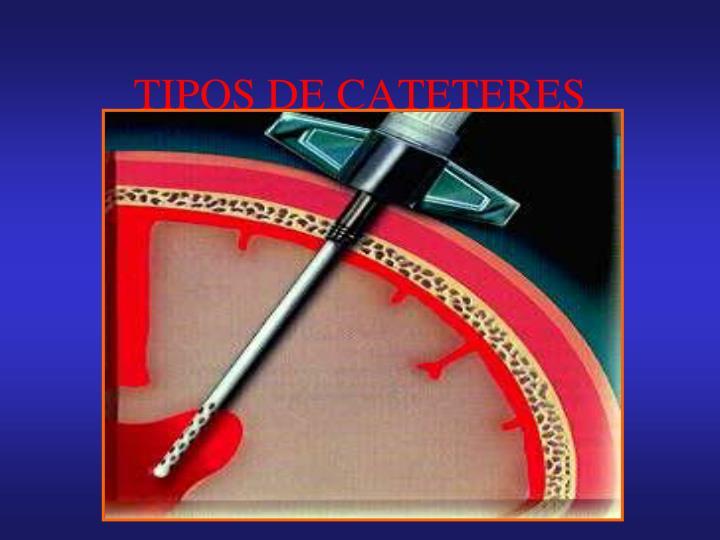 TIPOS DE CATETERES