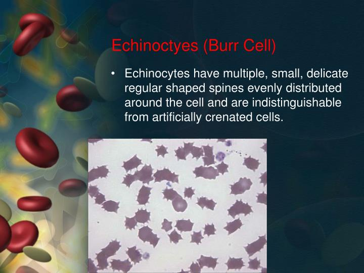 Echinoctyes (Burr Cell)