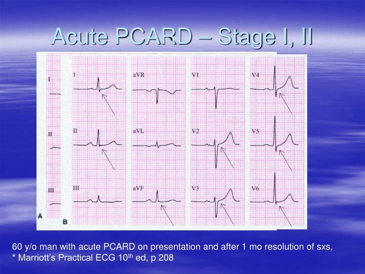 Acute PCARD – Stage I, II
