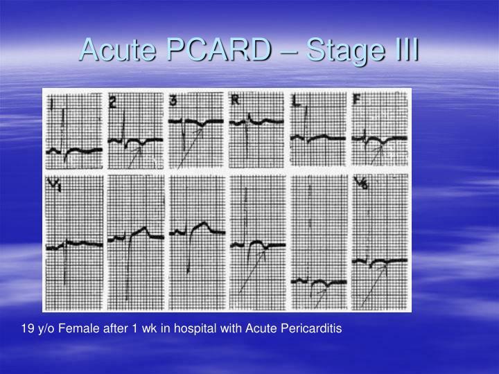 Acute PCARD – Stage III