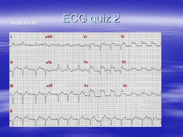 ECG quiz 2
