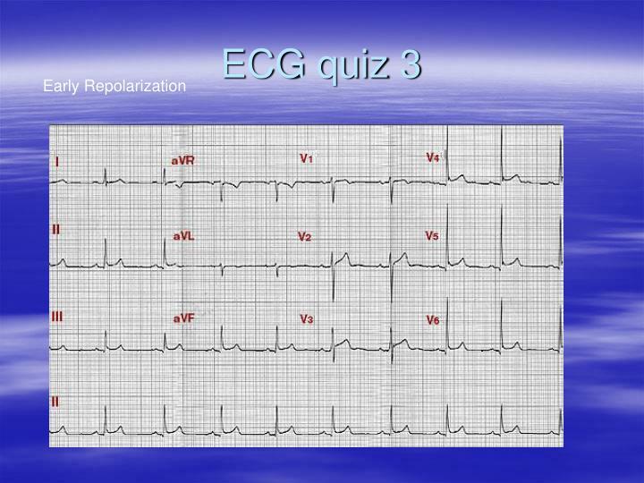 ECG quiz 3