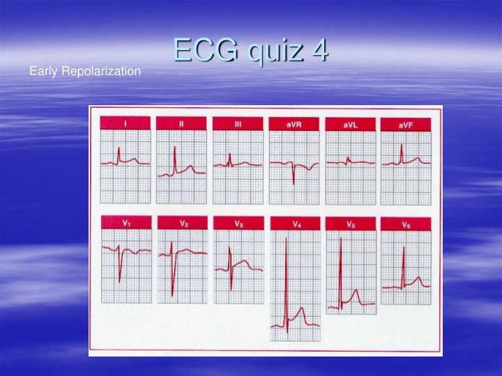 ECG quiz 4