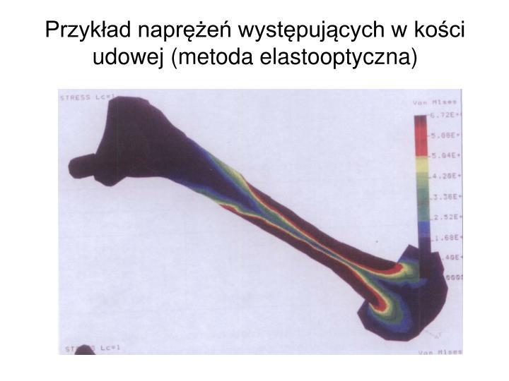 Przykład naprężeń występujących w kości udowej (metoda elastooptyczna)