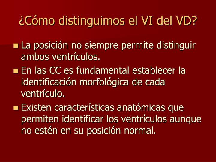 ¿Cómo distinguimos el VI del VD?