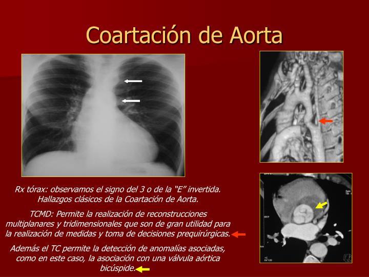 Coartación de Aorta