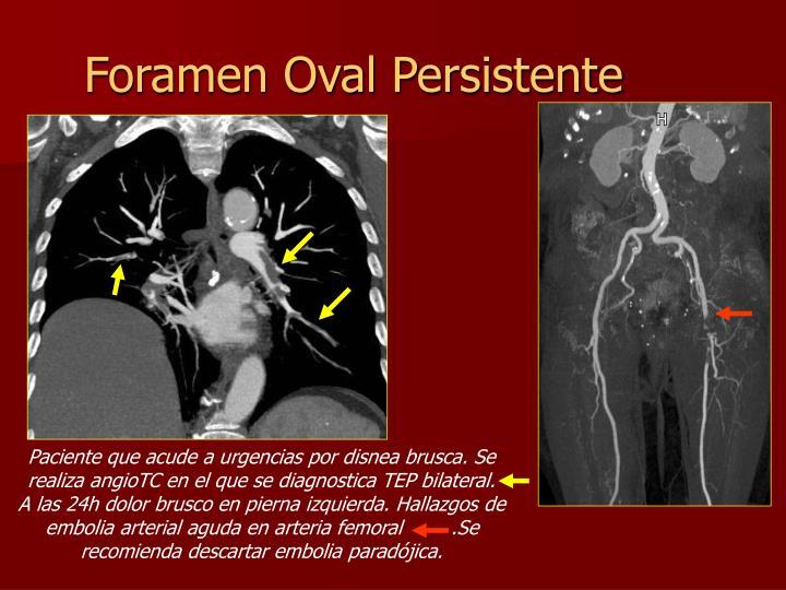 Foramen Oval Persistente