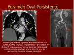 foramen oval persistente1