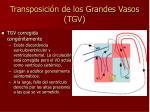 transposici n de los grandes vasos tgv1