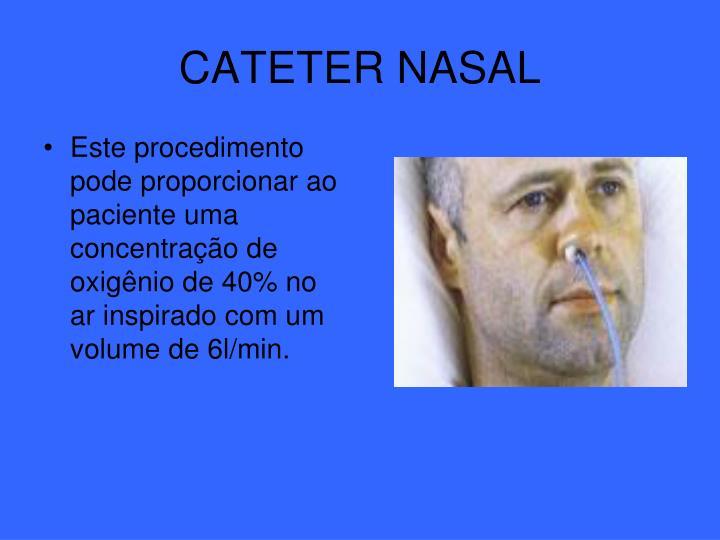 CATETER NASAL