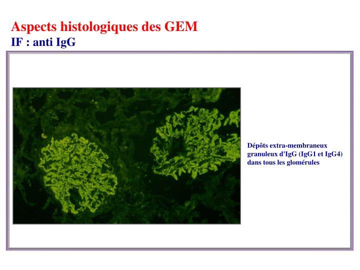 Aspects histologiques des GEM