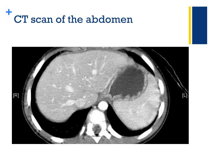 CT scan of the abdomen