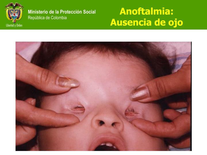 Anoftalmia: Ausencia de ojo