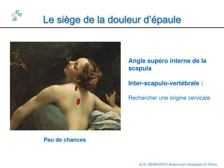 Le siège de la douleur d'épaule