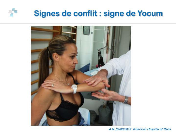 Signes de conflit : signe de Yocum