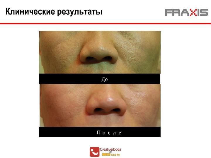 Клинические результаты