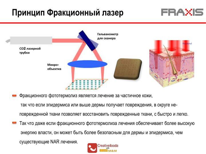 Принцип Фракционный лазер