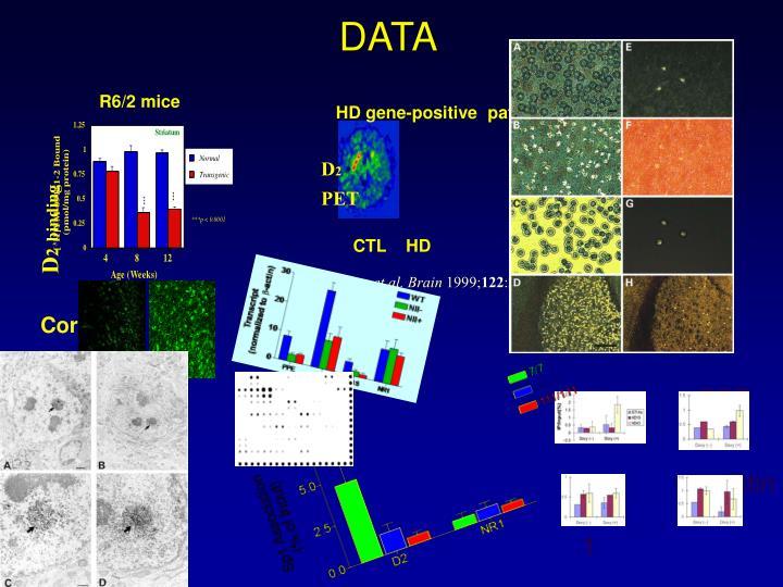 HD gene-positive  patients
