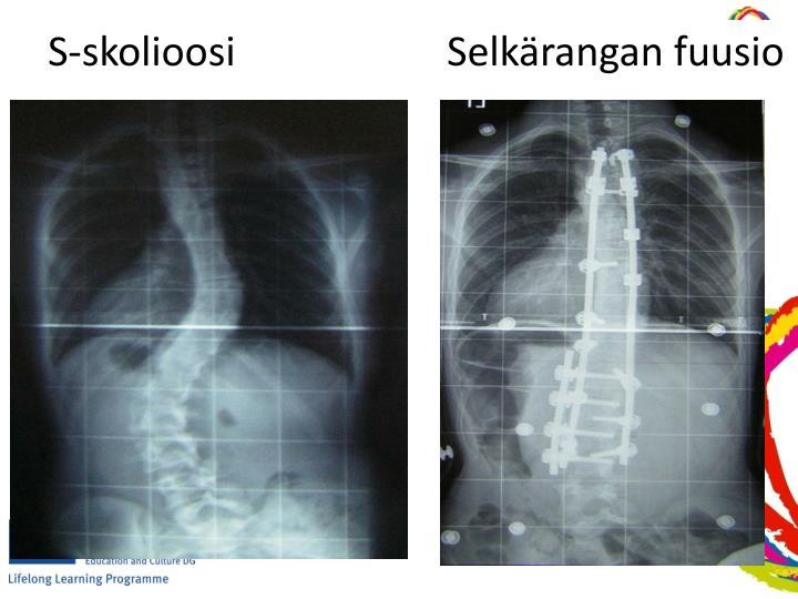 S-skolioosiSelkärangan fuusio