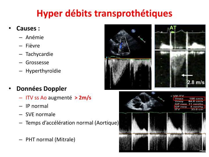 Hyper débits