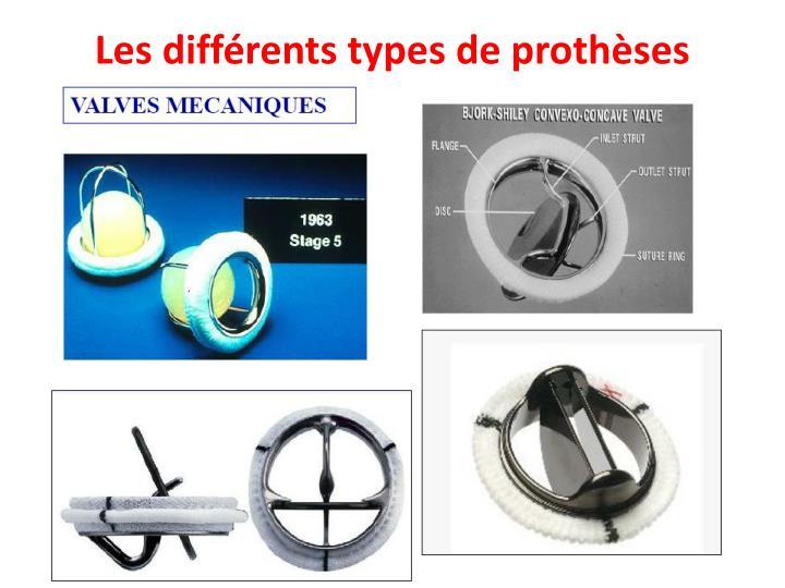 Les différents types de prothèses