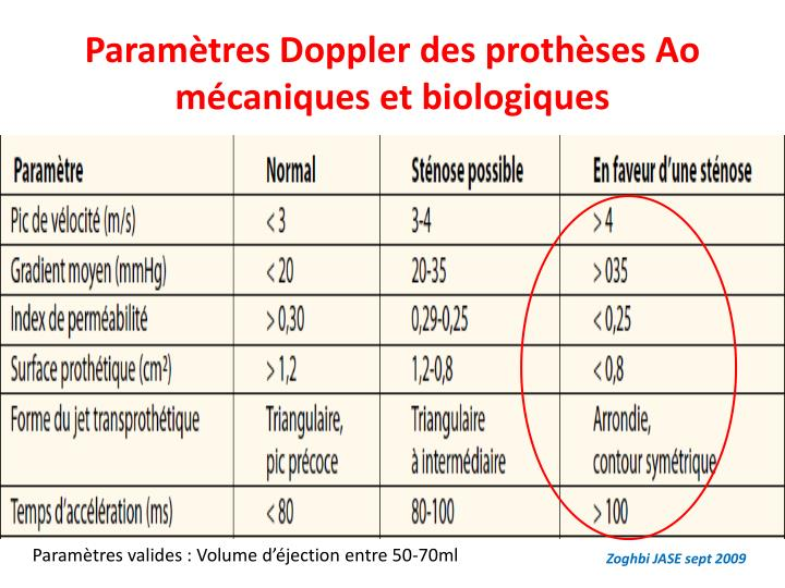 Paramètres Doppler des prothèses