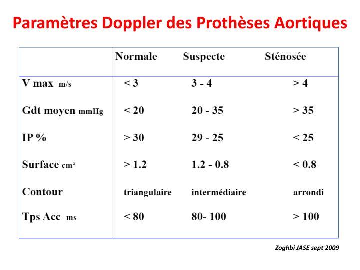 Paramètres Doppler des Prothèses Aortiques