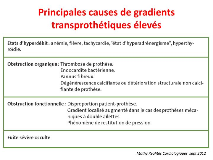 Principales causes de gradients