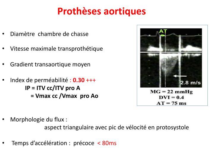 Prothèses aortiques