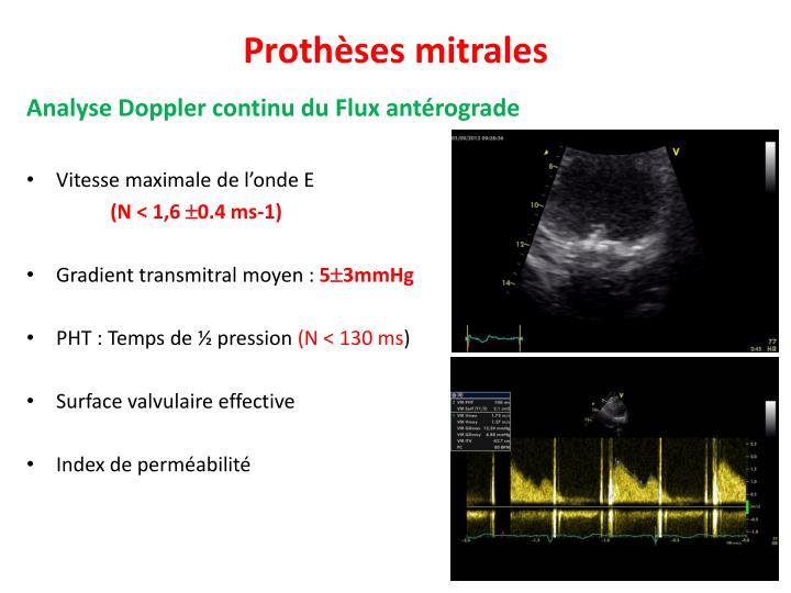 Prothèses mitrales