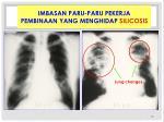 imbasan paru paru pekerja pembinaan yang menghidap silicosis