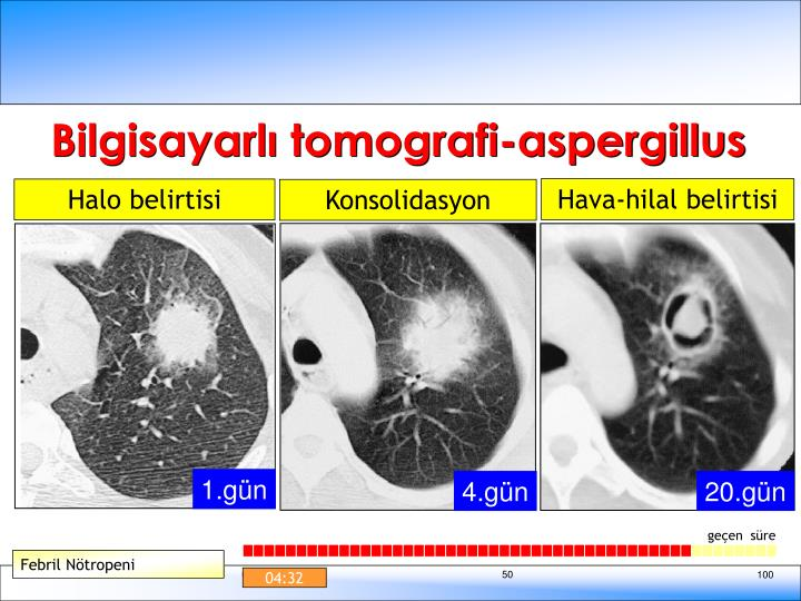 Bilgisayarlı tomografi-aspergillus