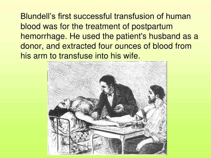 Blundell's first successful transfusion of human blood was for the treatment of postpartum hemorrhage. He used the patient's husband as a donor, and extracted four ounces of blood from his arm to transfuse into his wife.